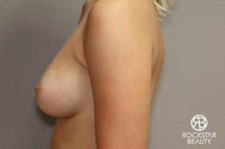 Breast Augmentation: Patient 7 - After Image 5