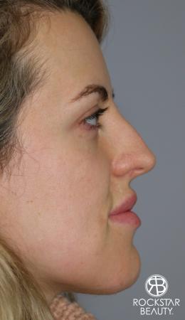 Rhinoplasty: Patient 1 - Before Image 2
