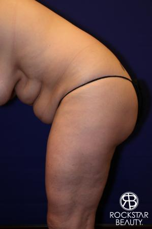 Tummy Tuck: Patient 12 - Before Image 4