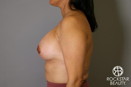 Breast Augmentation: Patient 13 - After Image 5