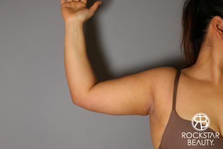 Liposuction: Patient 12 - After Image 1