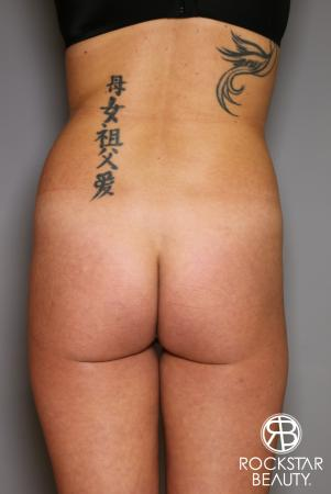 Brazilian Butt Lift: Patient 6 - Before Image 1