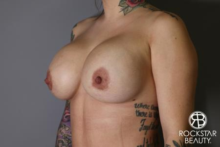 Breast Implant Exchange: Patient 10 - After Image 3