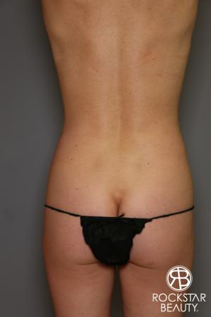 Liposuction: Patient 13 - Before and After Image 4