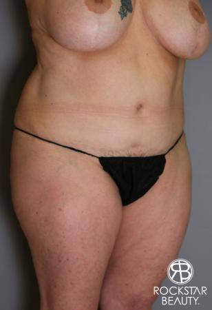 Tummy Tuck: Patient 12 - After Image 3