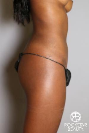 Liposuction: Patient 19 - After Image 4