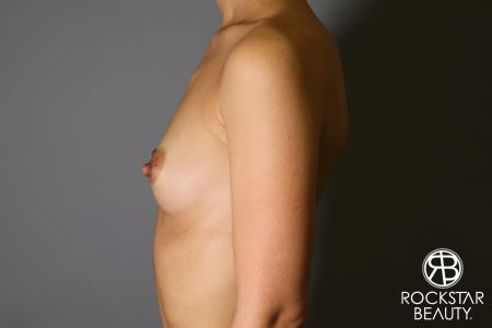 Breast Augmentation: Patient 17 - Before Image 3