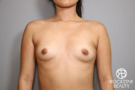 Breast Augmentation: Patient 4 - Before Image 1
