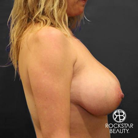 Mastopexy: Patient 1 - Before Image 3