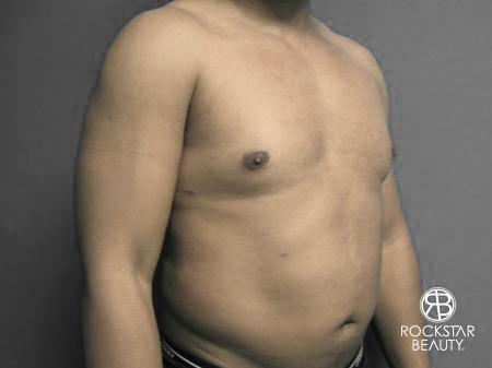 Liposuction: Patient 10 - After Image 2