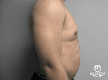 Liposuction: Patient 10 - After Image 3