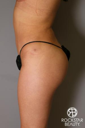 Liposuction: Patient 14 - After Image 4