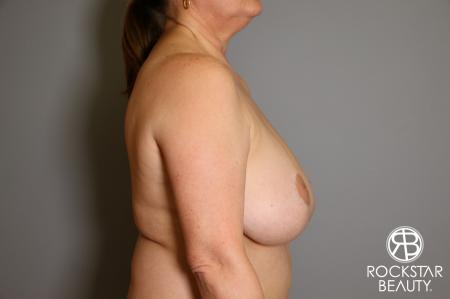Mastopexy: Patient 2 - Before and After Image 4