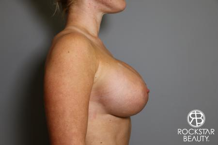Breast Augmentation: Patient 15 - After Image 5