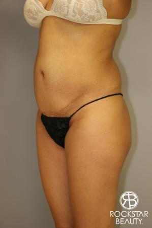 Liposuction: Patient 3 - Before Image 4
