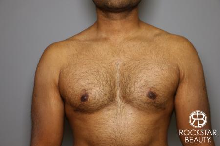 Liposuction: Patient 16 - After Image 3