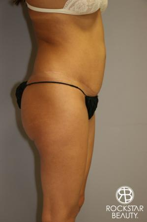 Liposuction: Patient 3 - Before Image 3