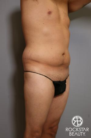 Tummy Tuck: Patient 5 - Before Image 3