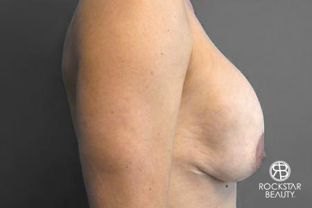 Breast Implant Exchange: Patient 2 - Before Image 2