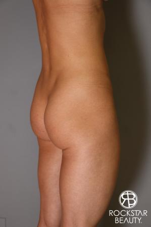 Butt Augmentation: Patient 3 - Before Image 4