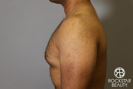 Liposuction: Patient 16 - Before Image 1