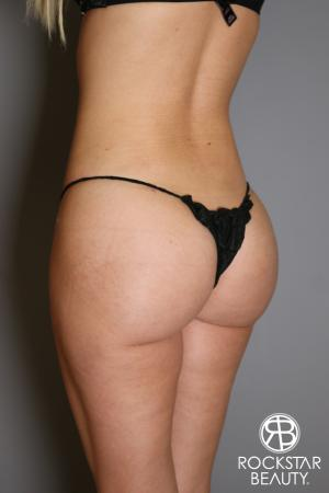 Brazilian Butt Lift: Patient 2 - After Image 3