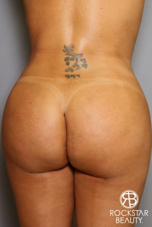 Brazilian Butt Lift: Patient 12 - After Image 1