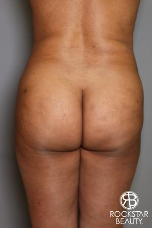 Brazilian Butt Lift: Patient 11 - Before Image 1
