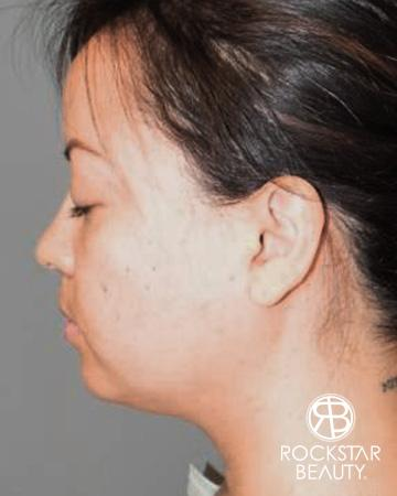 SmartLipo®-Face/Neck: Patient 1 - Before Image 1