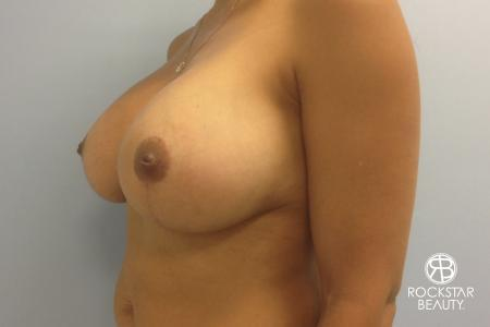 Combo Procedures - Breast: Patient 1 - After Image 4