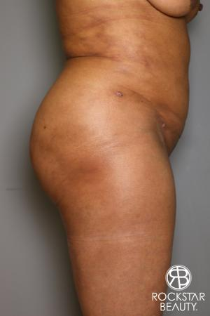 Brazilian Butt Lift: Patient 11 - After Image 4