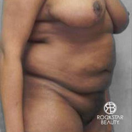 Tummy Tuck: Patient 9 - Before Image 2