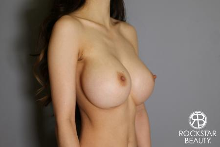 Breast Implant Exchange: Patient 8 - Before Image