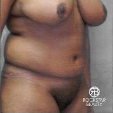 Tummy Tuck: Patient 9 - After Image 2