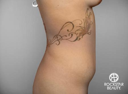 SmartLipo®: Patient 3 - Before Image 2