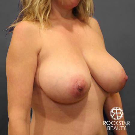 Mastopexy: Patient 1 - Before Image 2