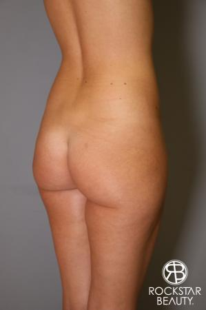 Brazilian Butt Lift: Patient 2 - Before and After Image 4