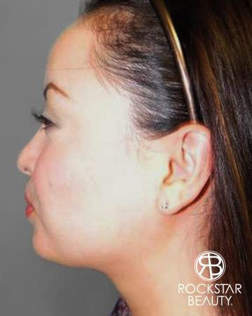 SmartLipo®-Face/Neck: Patient 1 - After Image 1