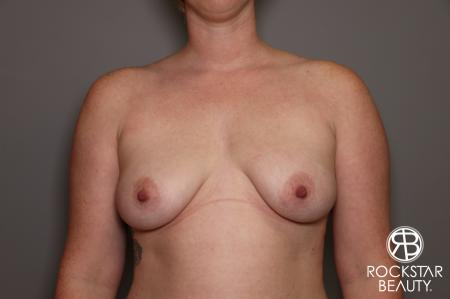 Breast Augmentation: Patient 11 - Before Image 1