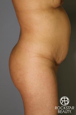 Brazilian Butt Lift: Patient 12 - Before Image 3