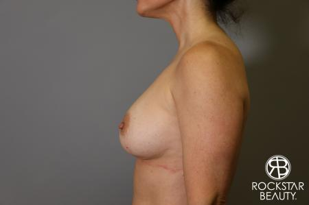 Breast Implant Exchange: Patient 6 - Before and After Image 4