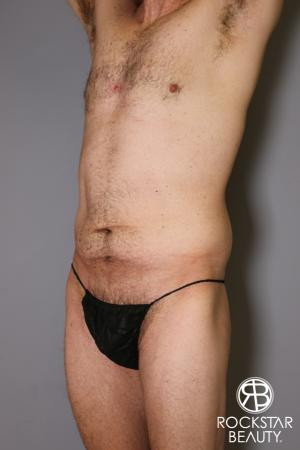 Tummy Tuck: Patient 11 - Before Image 4