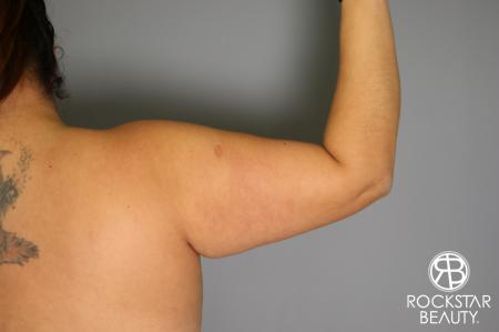 Liposuction: Patient 12 - Before and After Image 4