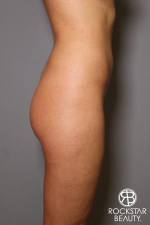 Brazilian Butt Lift: Patient 5 - Before Image 3