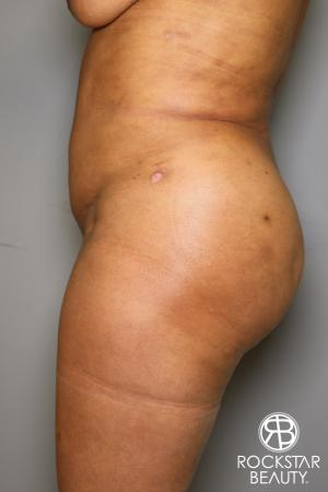 Brazilian Butt Lift: Patient 11 - After Image 5