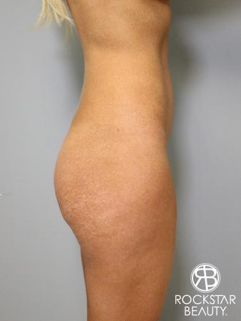 Butt Augmentation: Patient 1 - Before and After Image 3