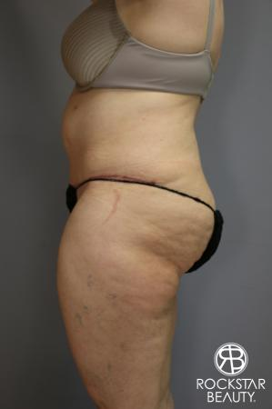 Tummy Tuck: Patient 4 - After Image 5