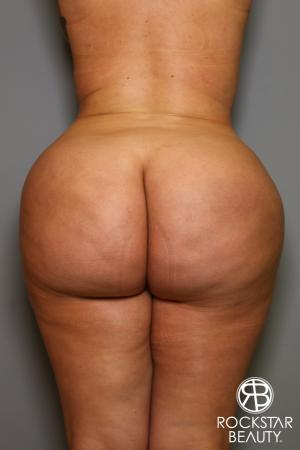 Brazilian Butt Lift: Patient 14 - After Image 1