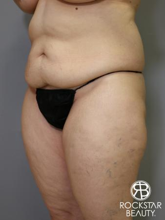 Tummy Tuck: Patient 4 - Before Image 4