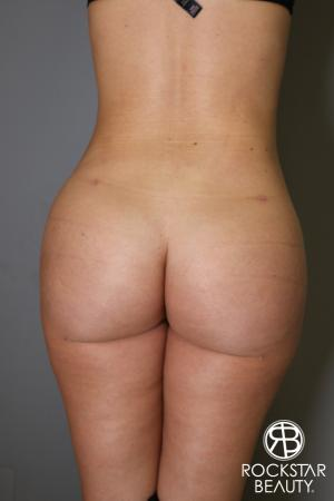Brazilian Butt Lift: Patient 2 - After Image 1